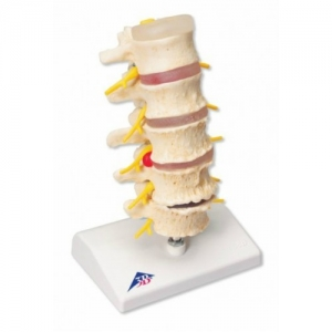 3bscientific-vertebral-degeneration-model